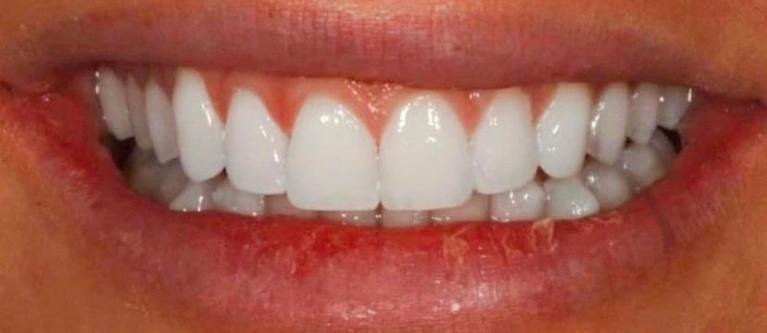 Glo-Whitening-After-Image