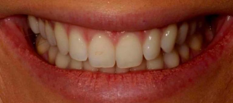 Glo-Whitening-Before-Image